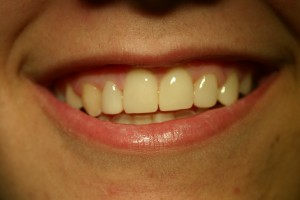 Carillas dentales en Clínicas Verdi