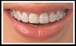 Ortodoncia invisible de Zafiro - Clinicas Verdi