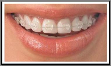 Ortodoncia invisible Zafiro - Clinicas Verdi